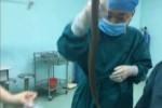 Suýt tử vong vì dùng lươn sống chữa táo bón