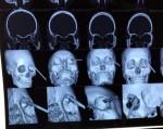 Yên Bái: Một thiếu nữ bị đoạn sắt đâm xuyên mắt phải, thủng nhãn cầu