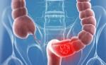 Thủ phạm gây ung thư đại trực tràng bạn có thể tránh