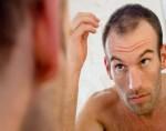 Đàn ông bị rụng tóc dễ mắc ung thư