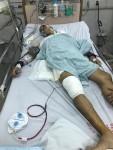 Hà Nội: Tạm đình chỉ vụ án người đàn ông bị tông xe tại quận Đống Đa