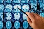 Những lầm tưởng phổ biến về thủ phạm gây ung thư