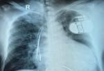 Chiếc máy 'kỳ diệu' giúp bệnh nhân suy tim thoát chết