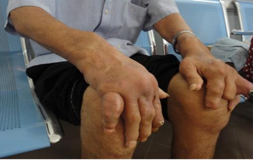 Bí kíp giúp người bệnh gout sống khỏe ngày Tết