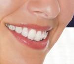 Niềng răng nguy hiểm thế nào?