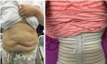 Trải nghiệm cắt bỏ 4 kg mỡ bụng của cô gái nặng 127 kg