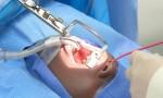 Bác sĩ cắt amidan như thế nào