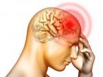 Nhận biết bệnh u não