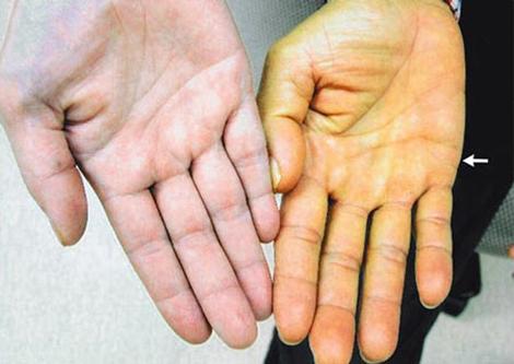 Dấu hiệu nguy hiểm cảnh báo bệnh gan