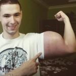 Chàng trai suýt mất mạng do tiêm chất tăng cơ bắp